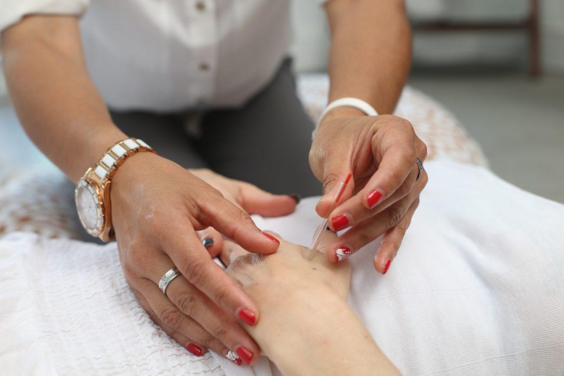 Akupunktura - na co pomaga i jak wygląda leczenie?